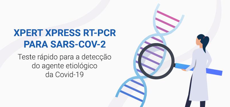 Teste rápido que detecta agente etiológico da Covid-19 tem resultado em até 24 horas