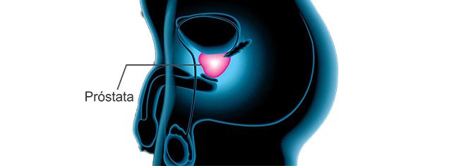 pca3 marcador prostata