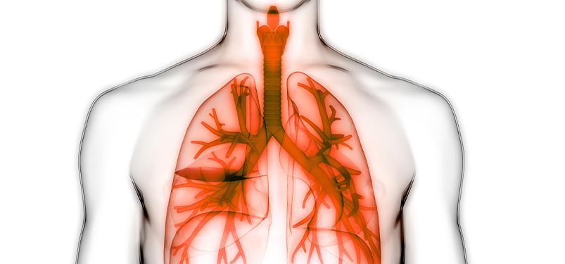 Histoplasmose – Diagnóstico pela Pesquisa de Antígeno Urinário Galactomannan