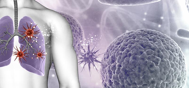 Painel Molecular Pneumonia: saiba mais sobre o novo exame do Richet