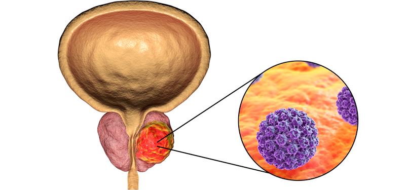 PET PSMA - uma maneira diferente de se avaliar o Câncer de Próstata